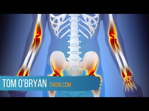 Inflammation is the New Gluten. - - Dr. Tom O'Bryan