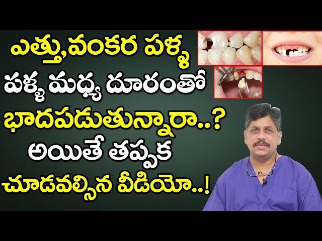 ఎత్తు ,వంకర పళ్ల.. పళ్ల మధ్య దూరం సరి చేసుకొనే పద్ధతి | DR. MURALI KRISHNA | Dentist