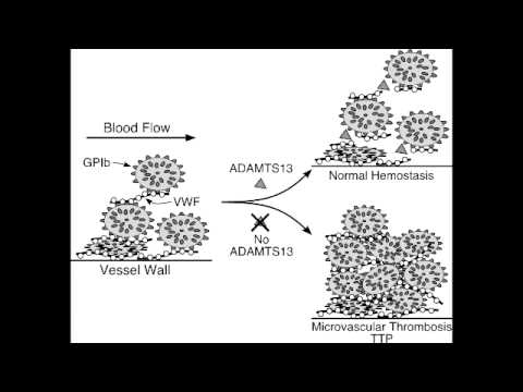 Platelet Disorder - Thrombotic Thrombocytopenic Purpura (TTP)