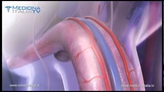 Repeat youtube video Prof. Romano Rago : la Disfunzione erettile