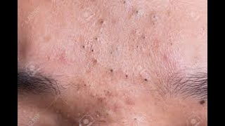 Relax with good videos on getting rid of acne (204) | Loan Nguyen