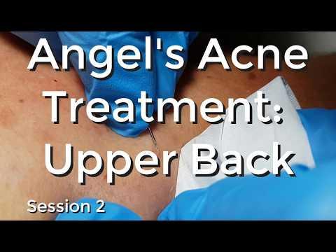 Angel's Acne treatment  Upper Back - Session II