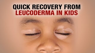Quick Recovery from Leucoderma in Kids - Dr. Nitika Kohli - AIMIL Health Care