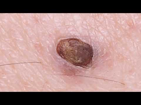 Mr. Blackhead's Dilated Pore of Winer (Blackhead King)