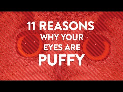 11 Reasons Why Your Eyes Are Puffy | Health
