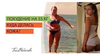 Как подтянуть кожу после похудения? Куда делась моя кожа после похудения на 55 кг?