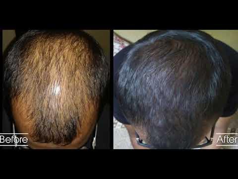 Treat hair loss medically without hair transplant, Kochi.