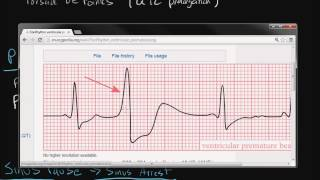 Electrocardiography: Cardiac Arrhythmias