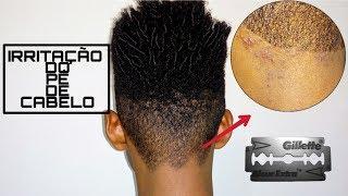 De barbear cura de irritação