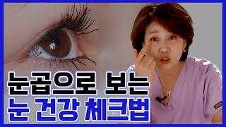 눈곱에 내 눈건강 상태가 보인다! 눈곱으로 보는 눈건강…