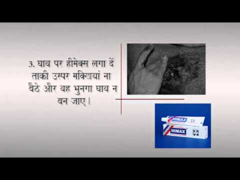 First Aid - Wound Treatment (Hindi) - YouTube