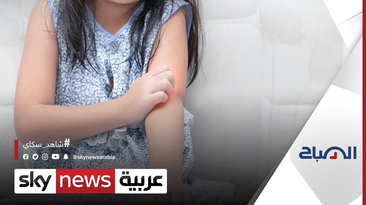 #حساسية_الجلد عند الأطفال.. متى تستدعي استشارة الطبيب؟ | #الصباح  - نشر قبل 23 ساعة