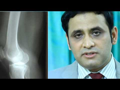 Knee Resurfacing Surgery,Orthopaedic; Dr. Chandrashekar P; Fortis Rajajinagar, Bangalore