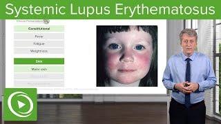 Systemic Lupus Erythematosus (SLE) in Children – Pediatrics | Lecturio