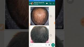 Zabardast Amazing Result of Hair Regrowth with Hijama, the cupping therapy ¡Stop baldness hair thin