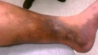 Lipodermatosclerosis de síntomas agudos