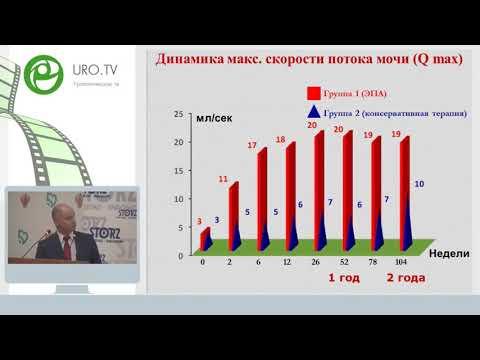 Курбатов Д Г - Эндоваскулярная эмболизация при аденоме простаты