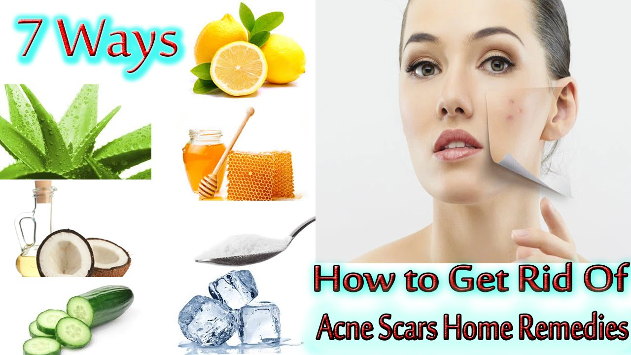Best Way To Get Rid Of Acne Home Remedies