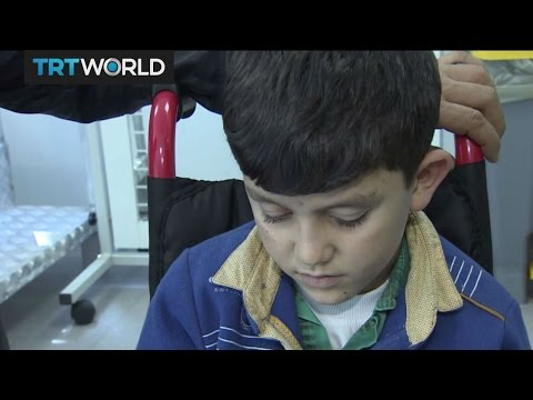 The War in Syria: Turkish prosthetic clinic helps Syrian kids
