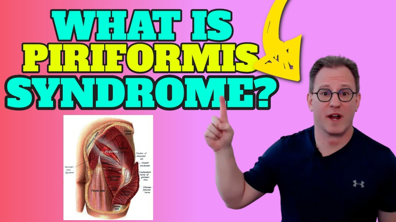 What Is Piriformis Syndrome | Find Out What Causes Piriformis Syndrome (Best Tips)