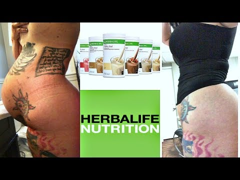 how-to-lose-weight-fast-after-c-section-||-no-exercise-needed-||-herbalife