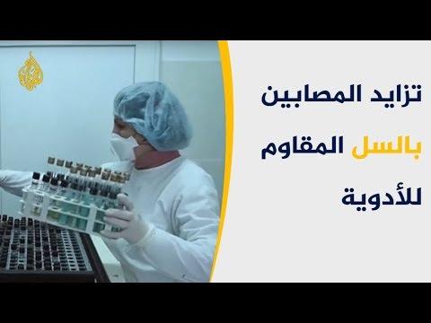تزايد المصابين بالسل المقاوم للأدوية.. هل ينتشر من جدبد؟  - نشر قبل 4 ساعة