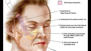 Круговая эндоскопическая подтяжка лица. Эльчин Мамедов  (+18)