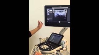 Echografie van de inguinale hernia - advanced course MSU