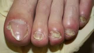 грибок кожи на пальцах рук