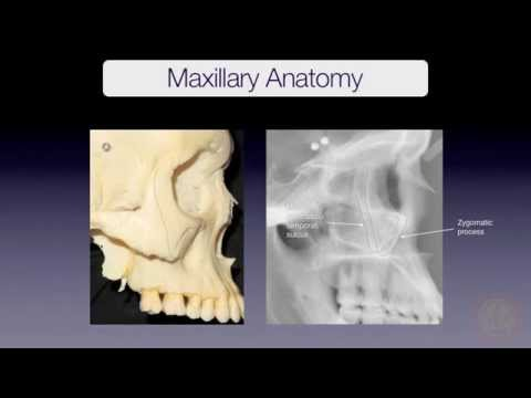 Maxillary Superimposition