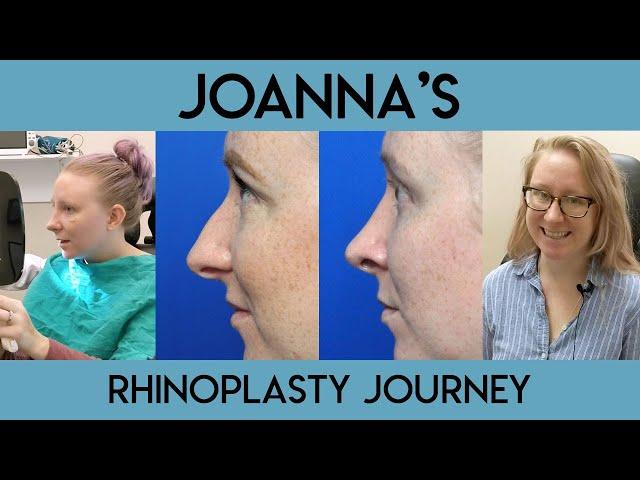 Joanna's Rhinoplasty Journey