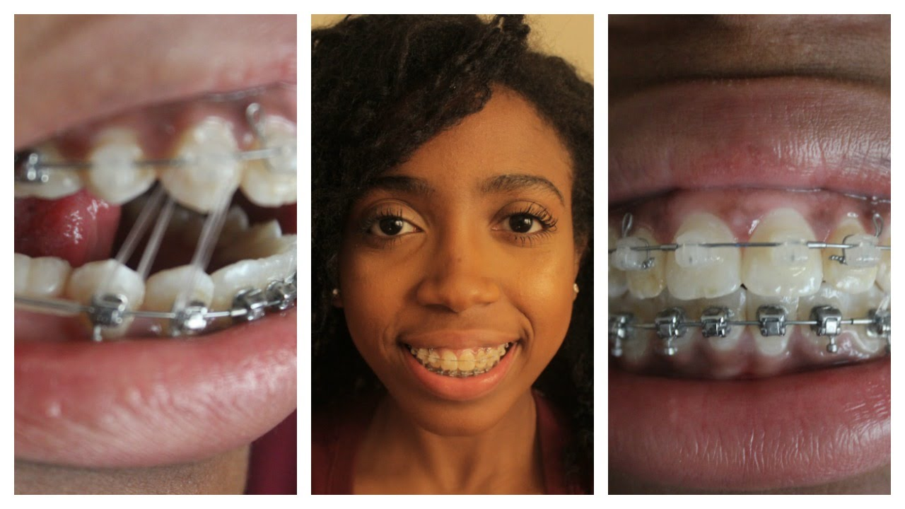 Adult Braces Journey Part 4 Rubber Bands Confidence And