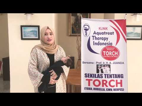 Berbagi cerita pengobatan TORCH klinik Aquatreat Therapy Indonesia bersama Kenny mariska