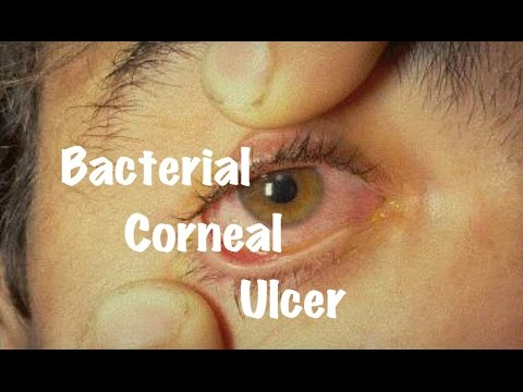 Medical Video Lecture Ophthalmology: Bacterial Corneal Ulcer