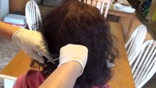 FNFNES Hair Sampling Example