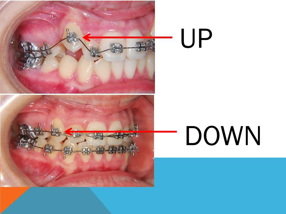 The Best Guide To How Do Braces Work