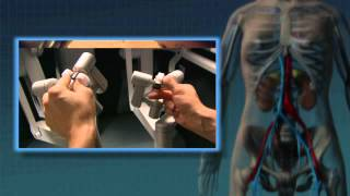 Chirurgie du rein faite avec le robot da vinci ( Intuitive ) : nephrectomie partielle