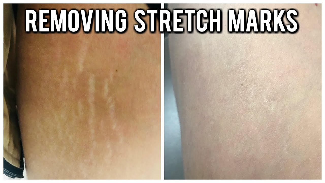Removing Stretch Marks Youtube