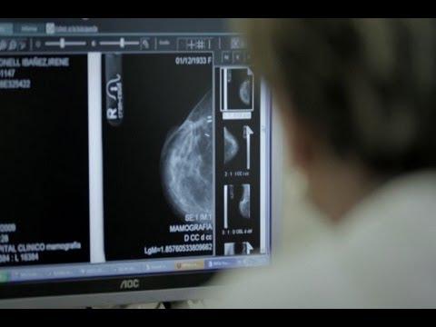 Afinitor de Novartis, nuevo fármaco para cáncer de mama