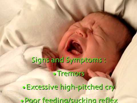 Neonatal Abstinence Syndrome - YouTube