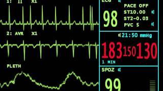 учащенный пульс.mov(Анимация - кардиомонитор для сериала
