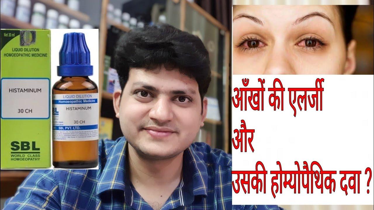 Eye Allergy ! Eye itching ! Homeopathic Medicine for allergic  conjunctivitis ?? Explain !