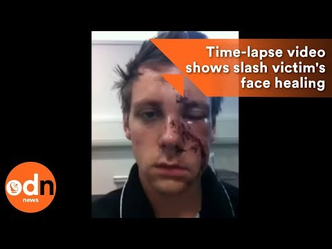 Incredible selfie time-lapse video shows slash victim's face healing