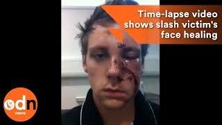 Incredible selfie time-lapse video shows slash victim