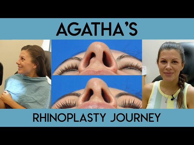 Agatha's Rhinoplasty Journey