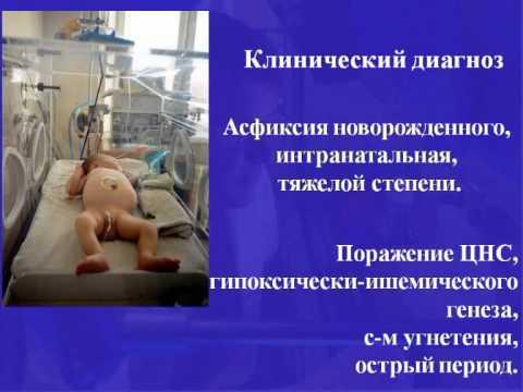 Видео с асфиксией ной фото 159-655
