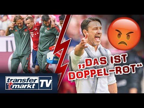FC Bayern beklagt Verletzte: So bewerten TM-User die Kritik | TRANSFERMARKT