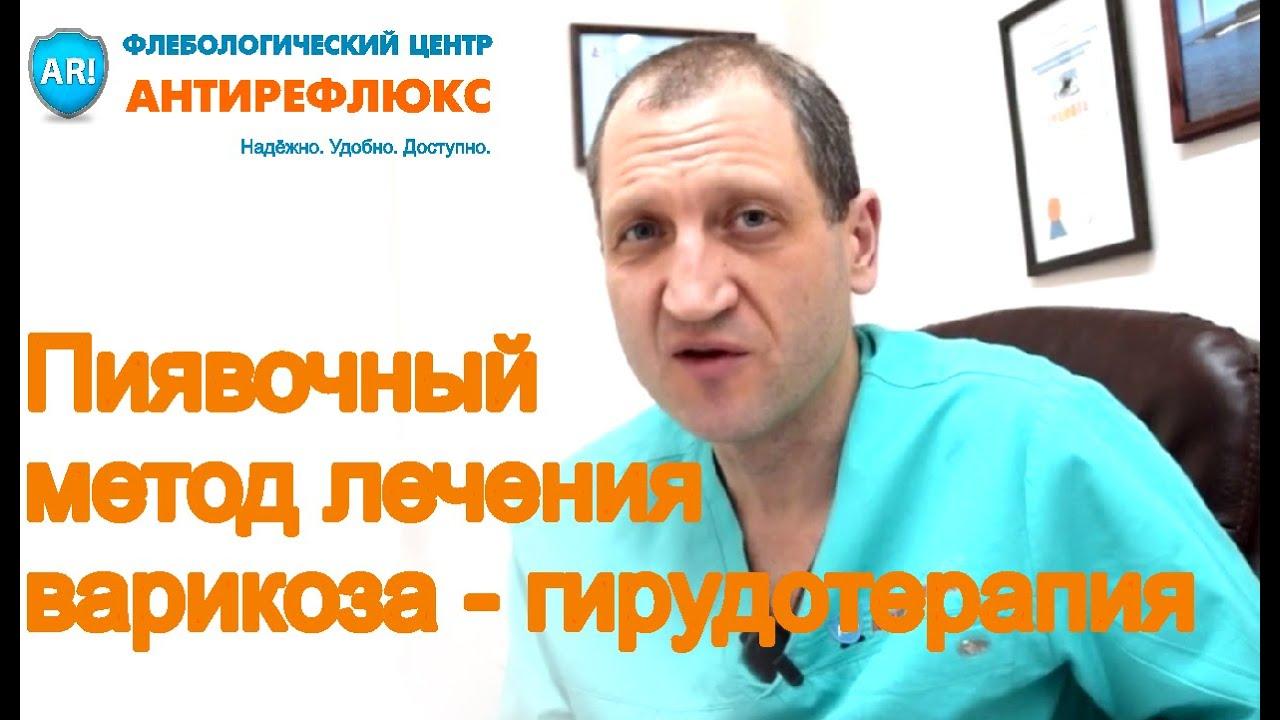 gudoterapie video de la varicoză)