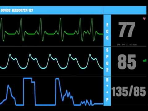 Mock Hospital Heart Rate Monitor - YouTube
