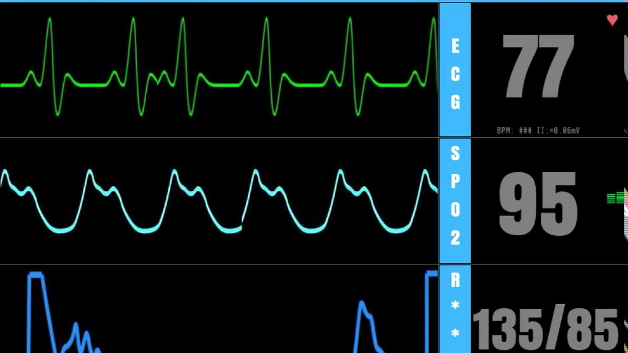 levitra fast heart rate